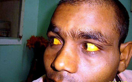 A sign of Jaundice